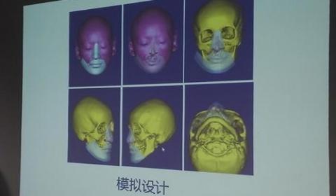 """27岁女子""""中国式换脸""""  在胸前区构建一张""""脸"""""""